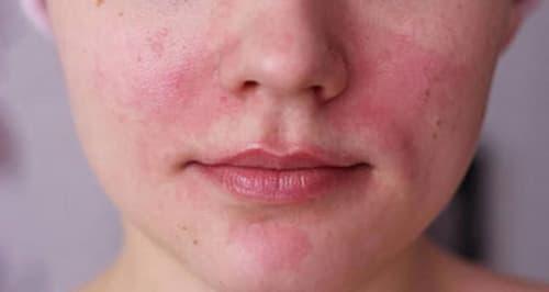 Dấu hiệu nhận biết da mặt nhạy cảm