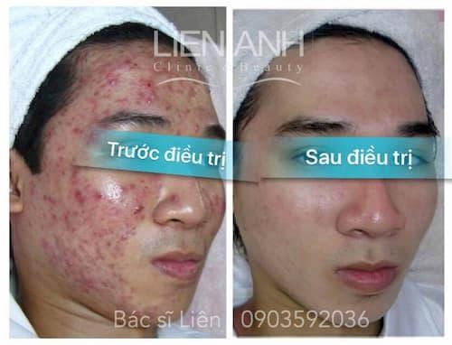 Kết quả điều trị mụn tại Viện thẩm mỹ Liên Anh Đà Nẵng