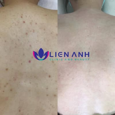 Laser trị viêm nang lông tại Đà nẵng