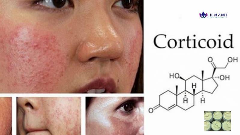 Corticoid là gì? Phục hồi và chăm sóc da mặt bị nhiễm độc Corticoid tại Đà Nẵng