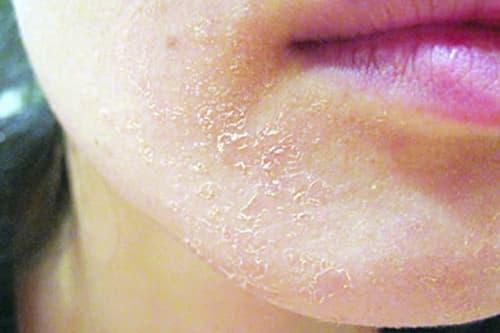 Cách phục hồi da hư tổn sau khi dùng thuốc rượu kem trộn
