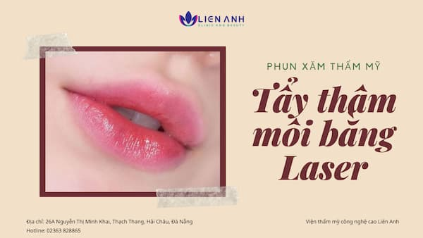 Tẩy thâm môi bằng Laser