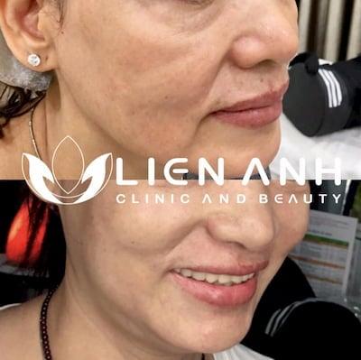 Trẻ hóa da, căng da mặt sau một liệu trình Harmony XL Pro