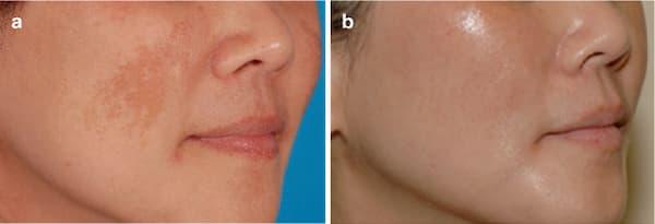 Điều trị nám da bằng laser công nghệ cao tại Đà nẵng