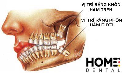 Vị trí các răng khôn ở hai hàm.