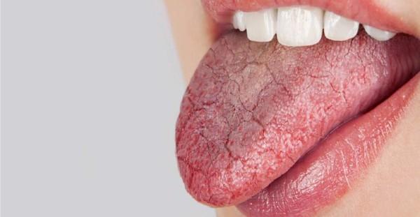 Chứng khô miệng cũng là tác nhân gây hôi miệng phổ biến.
