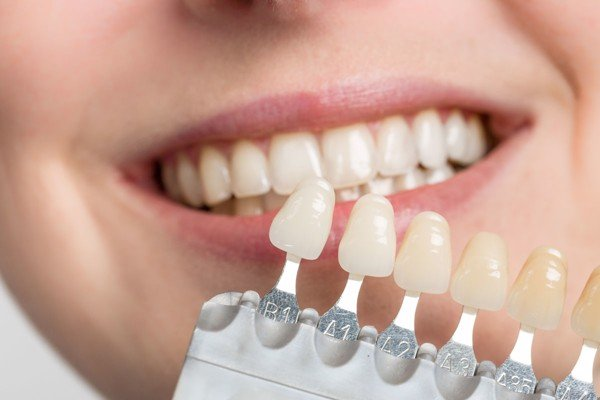 Veneer là hình thức thẩm mỹ cải thiện hình dáng và màu sắc của răng đã bị tổn thương.