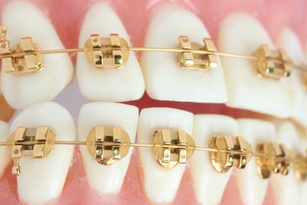golden-dental-braces