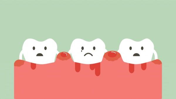 Bệnh viêm nha chu nếu không được xử lý sẽ gây rất nhiều vấn đề răng miệng.