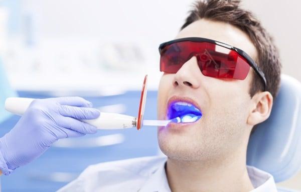 Làm trắng răng bằng laser là phương pháp làm trắng răng tại phòng khám nha khoa rất phổ biến.
