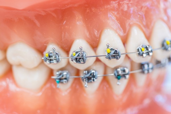 customized-orthodontic-treatment-systems