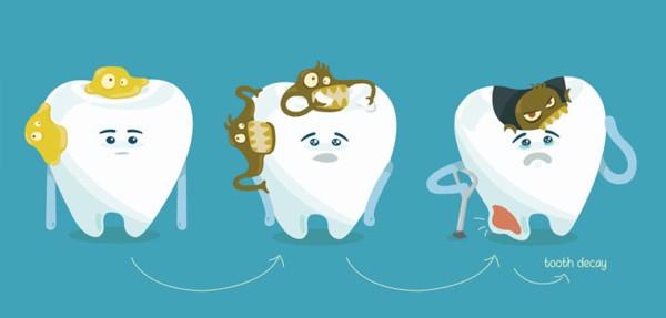 Sâu răng là bệnh lý răng miệng rất phổ biến.
