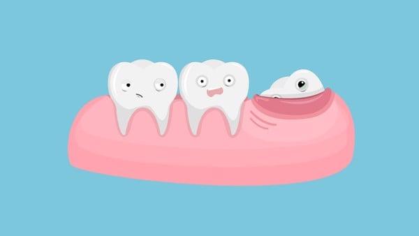 Răng khôn nếu không được nhổ bỏ khi cần sẽ gây ra nhiều ảnh hưởng xấu tới sức khỏe răng miệng.