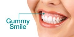 WHAT IS GUMMY SMILE? ALL YOU NEED TO KNOW ABOUT GUMMY SMILE