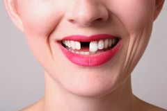 WHAT IS A LOOSE TOOTH? ALL YOU NEED TO KNOW ABOUT LOOSE TOOTH