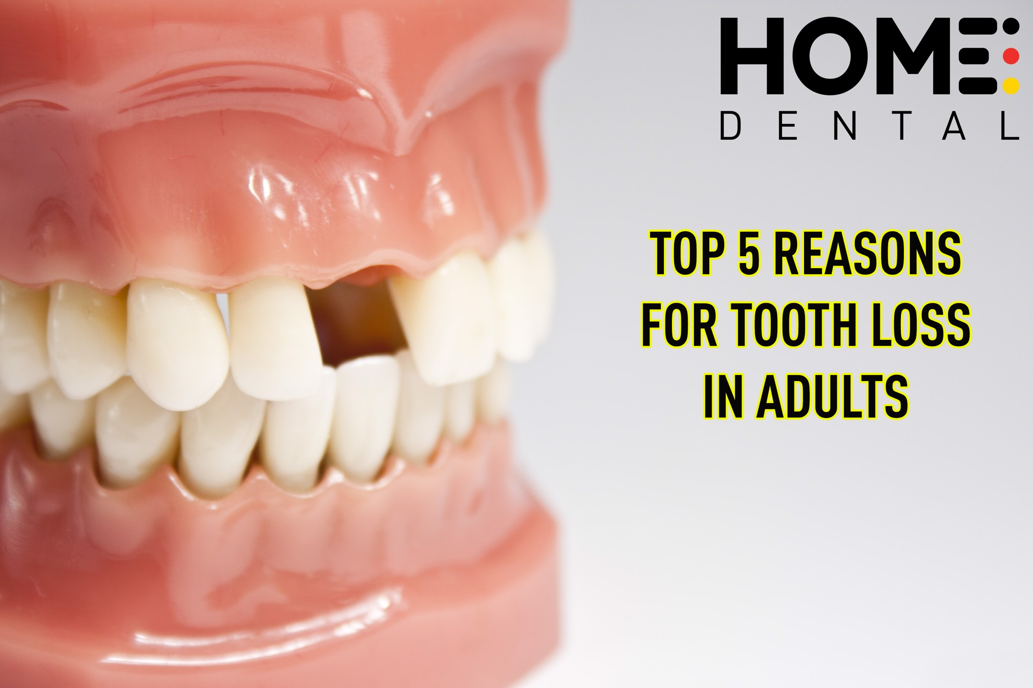 TOP 5 REASONS FOR TOOTH LOSS IN ADULTS