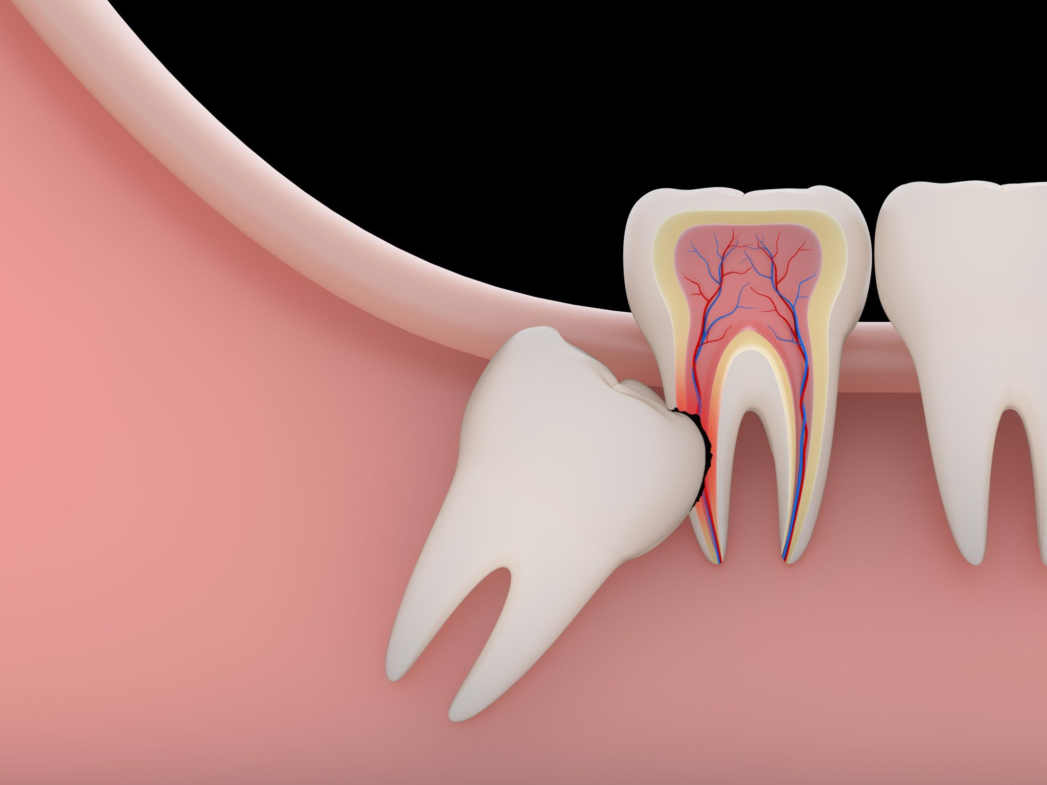 WHAT IS IMPLICIT WISDOM TEETH ?