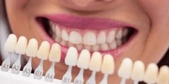 OVERCOMING SENSITIVE FEELING AFTER TEETH WHITENING