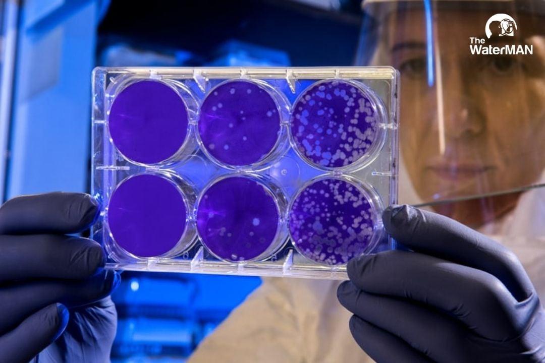 Kinh hãi trước tác hại của vi khuẩn coliform trong nước sinh hoạt