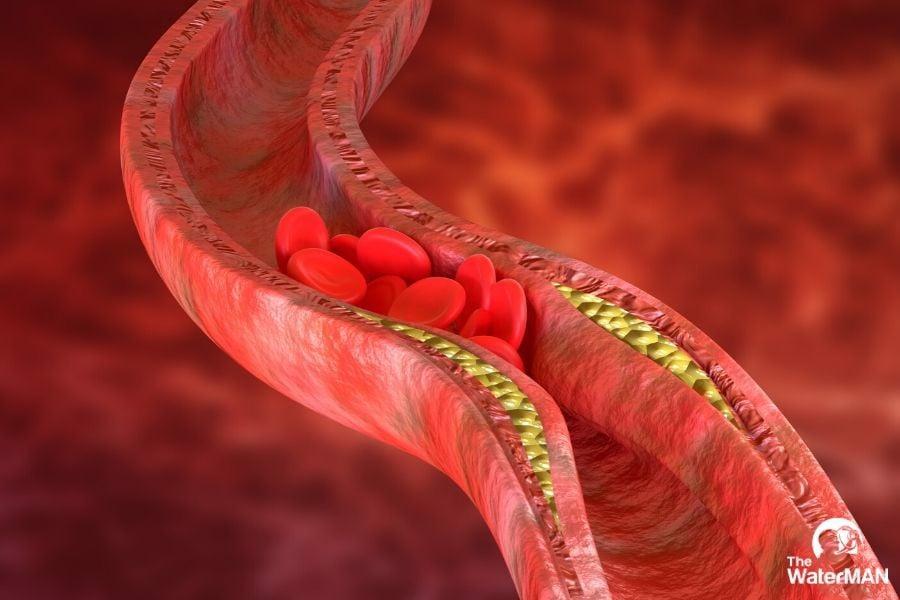 uống nước đúng cách - nước ion kiềm - cải thiện tim mạch