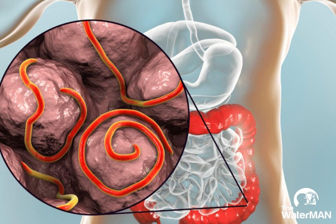 Uống nước chứa vi rút, vi khuẩn, chất phóng xạ, kim loại nặng là nguyên nhân dẫn tới bệnh giun sán