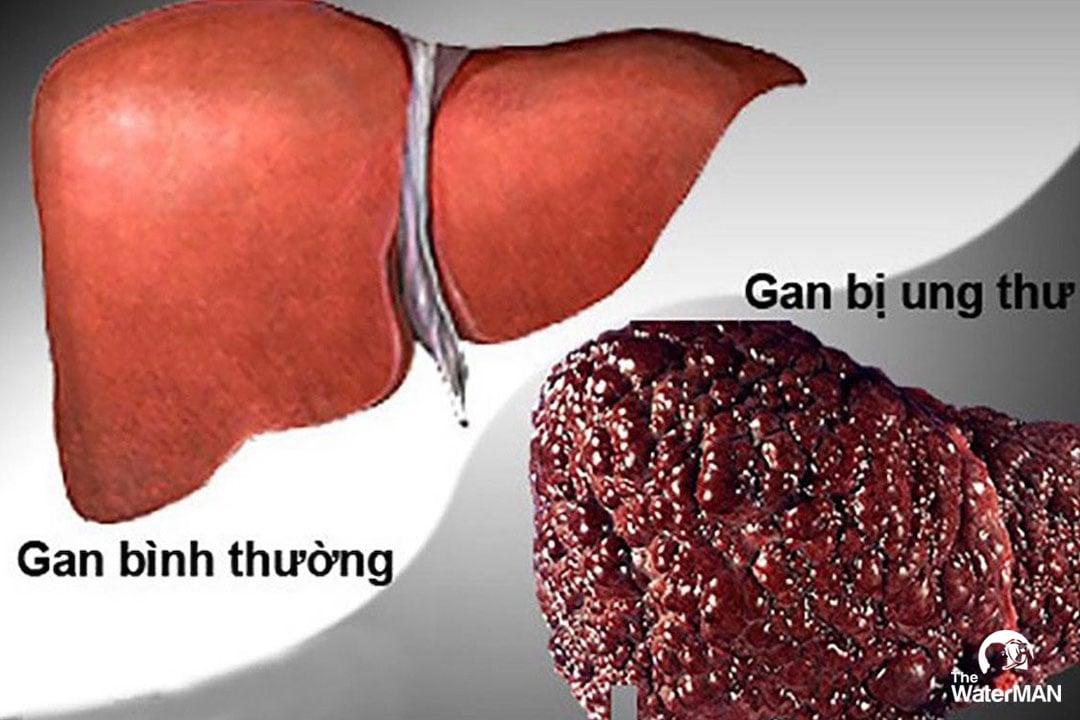 Cơ thể tích tụ độc tố lâu ngày sẽ hình thành ung thư gan