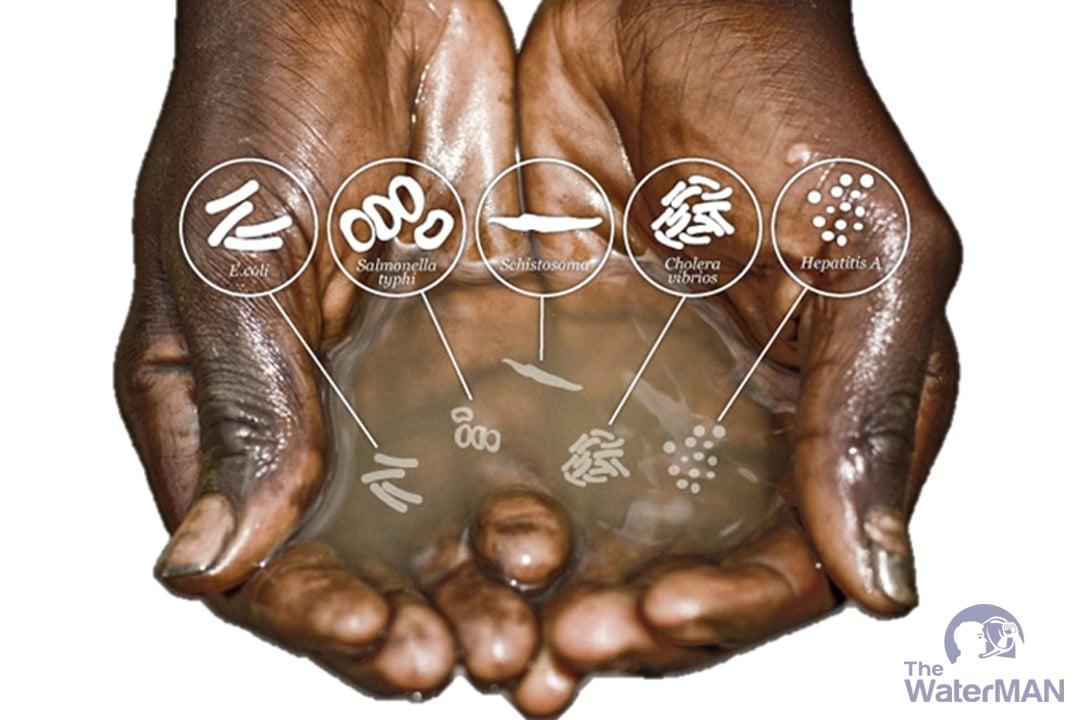 Nước bẩn là nguồn nước chứa những thành phần gây hại cho sức khỏe người sử dụng