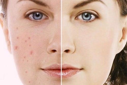 Có nên dùng serum mụn làm trắng da không?