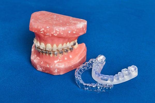 Các phương pháp niềng răng phổ biến hiện nay!
