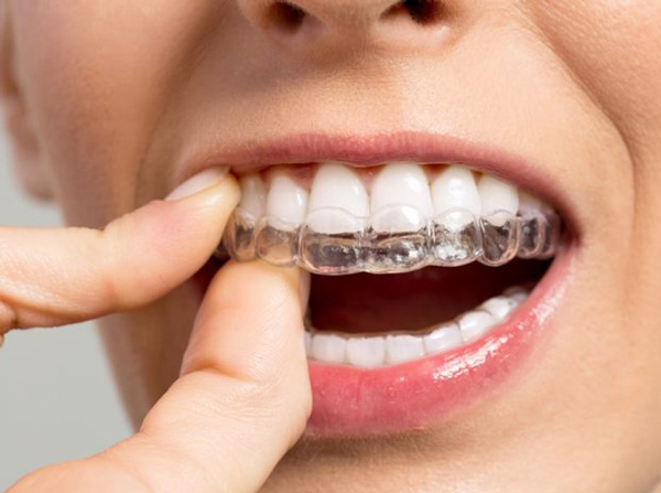 Khay niềng răng trong suốt Invisalign