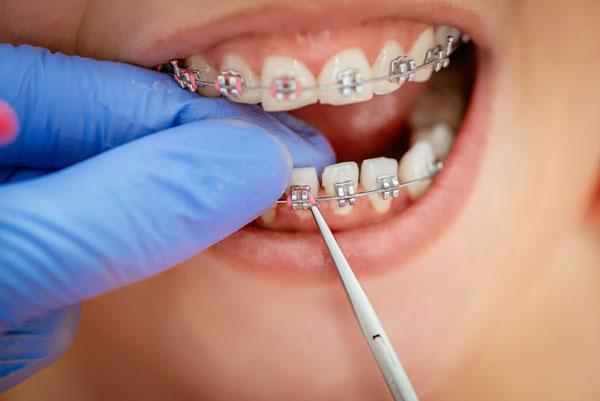 Niềng răng sớm cho con sẽ mang lại nhiều lợi ích cho cả phụ huynh và trẻ về lâu dài
